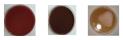 Absceso imagen toma de muestra 2