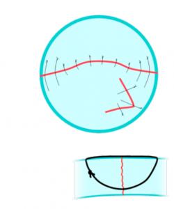 Penetrante corneal