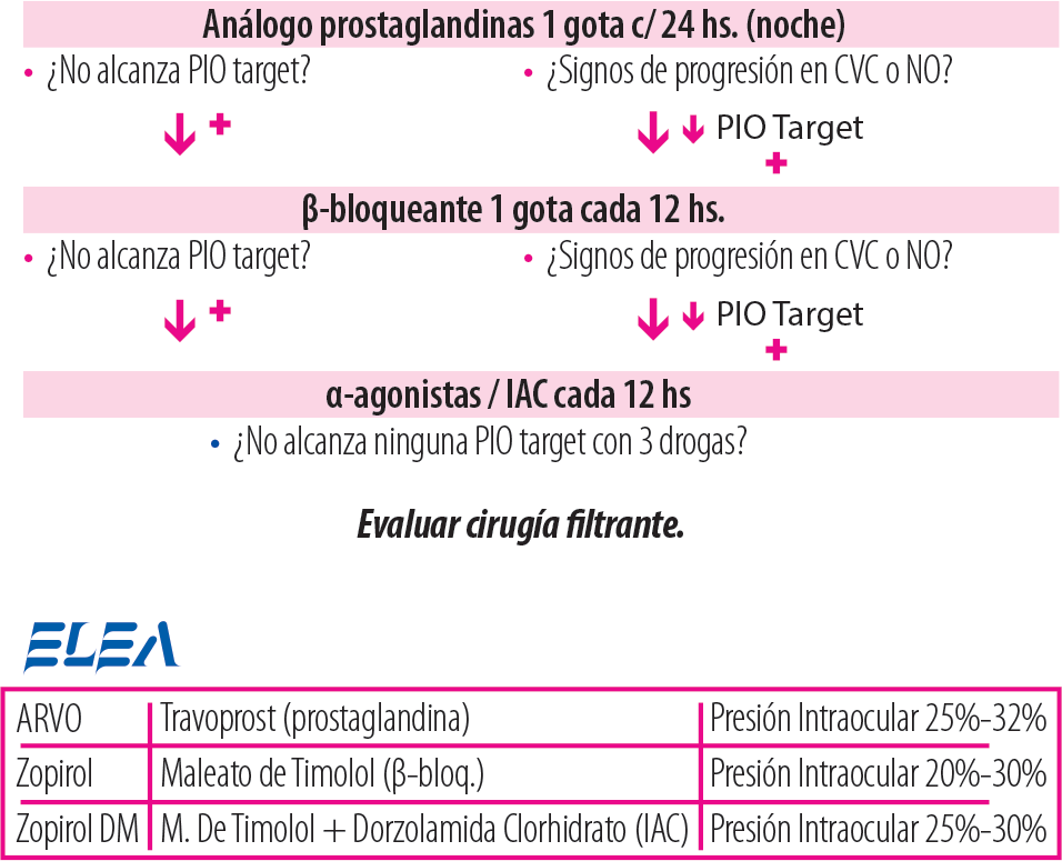 glucoma4